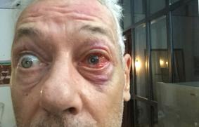 Thierry Poupard eye surgery