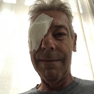 Cataracte chirurgie